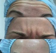 Врач-косметолог, услуги в сфере эстетической медицины в Киеве